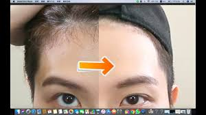 how to tidy up hairline remove baby
