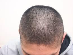 薄毛の悩みは人それぞれ 王様のあたまはハゲてないフサ坊主への道ー