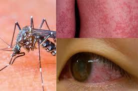verschijnselen zika virus