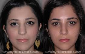 contouring round face before and after. front view - female before and after nose job contouring round face