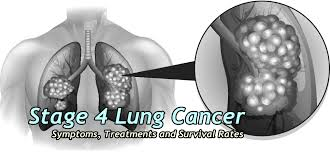 Stage 4 Lung Cancer Survival Rate Stage 4 Lung Cancer Treatments Symptoms And Survival Rates
