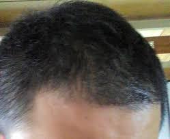 絶壁頭に似合う髪型女性のヘアスタイル編 With Regard To 頭 髪型