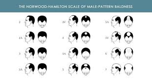 Male Pattern Baldness Causes Mesmerizing Causes Of Hair Loss In Men Hair Technologies