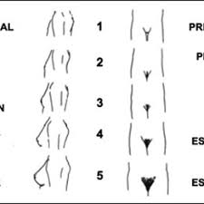 Pubic Hair Growth Chart Tanner Scale For Categorizing Pubertal Breast Development