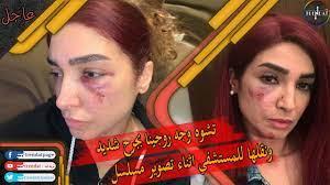 عاجل . اصابة الفنانة روجينا بجرح شديد في الوجه اثناء تصوير مسلسل بنت  السلطان - YouTube