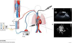 Bicaval Dual Lumen Cannula For Venovenous Extracorporeal