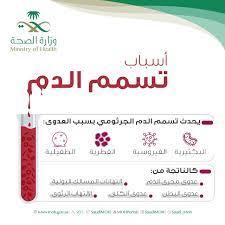 هل تسمم الدم لة علاج