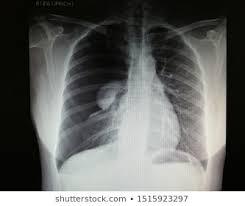 Pneumothorax Images Stock Photos Vectors Shutterstock