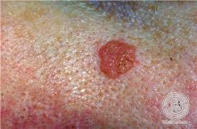 HPV Vaccine   Diseases Dermatology Center of La Jolla hpv vulva