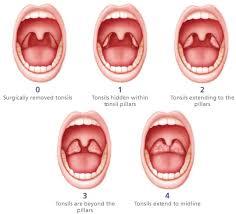Tonsil Size Chart Tonsil Size Scoring Sleep Apnea Sleep Apnea Remedies