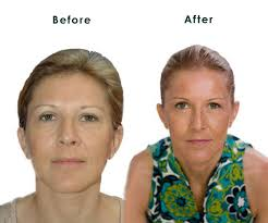 Facial Rejuvenation Acupressure Look Younger Naturally