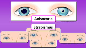 Normal Pupil Size Chart How To Assess The Eyes Nursing