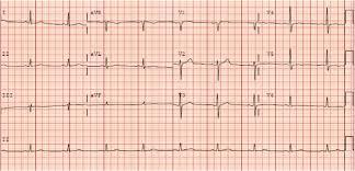 left ventricular lipoma a rare case