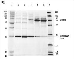 Igg Light Chain Size Trimolecular Complexes Of Light Chain Dimers In Serum Of A