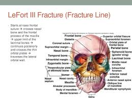 Le Fort Fracture Fractures Of The Middle Third Of The Facial Skeleton
