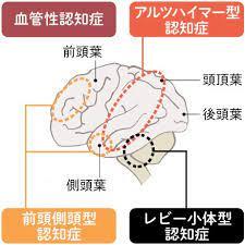 前頭 側 頭 型 認知 症