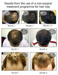 Cure For Male Pattern Baldness Amazing Male Pattern Baldness Genetic But Not Irreversible