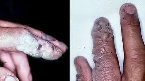 Chemical Burns: Causes, Symptoms, and Diagnosis