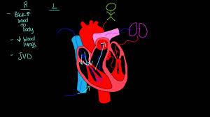 Right Vs Left Sided Heart Failure Chart Left Sided Vs Right Sided Heart Failure