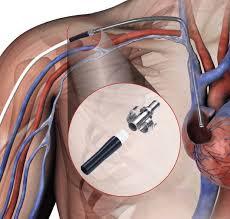 What Is the <b>Super HeRO</b>? - Merit Medical