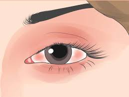 Come Fermare Un Occhio O Un Sopracciglio Che Trema