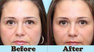 Puffy Eyes - How to Get Rid Of Eye Bags Instantly - Eye Bags Removal ...
