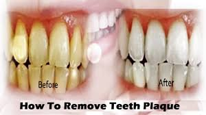 how to remove teeth plaque in few minutes