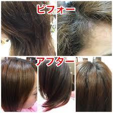 Kousanさんのヘアスタイル ナチュラル縮毛矯正です不自然 Tredina