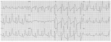 Acute Coronary Syndrome St Elevation Myocardial Infarction Basic