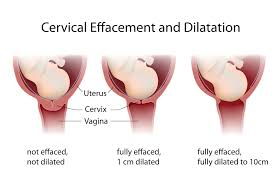 Effacement And Dilation Of The Cervix Chart Cervical Effacement What You Need To Know