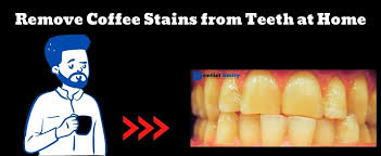 Coffee is a source of pigments. How To Remove Coffee Stains From Teeth At Home 5 Effective Methods