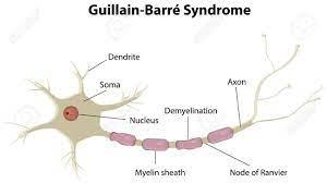 Guillain-Barré-Syndrom Lizenzfrei ...