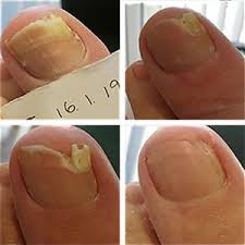 Fungal nail treatments - Feetwise Footcare
