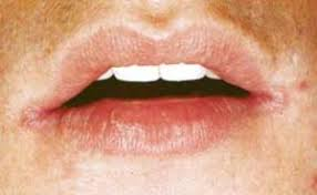 Поражения слизистой оболочки полости рта при сифилисе Болезни  Поражения слизистой оболочки полости рта при сифилисе
