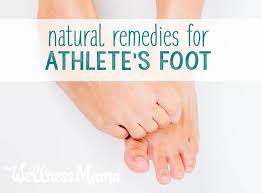 natural remes for athletes foot
