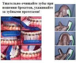 Уход за зубами чистка зубов гигиена полости рта Уход за зубами