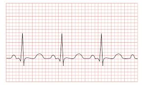 File Tachycardia Ecg Paper Svg Wikimedia Commons