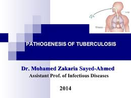 Pathophysiology Of Pulmonary Tuberculosis In Flow Chart Pathogenesis Of Tuberculosis