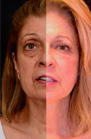 as we age the fat from the edge of our lower eyelids down to the cheekbone loses volume creating an uneven surface and excess skin