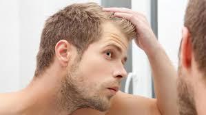 Glatze So Kaschieren Sie Kahle Stellen