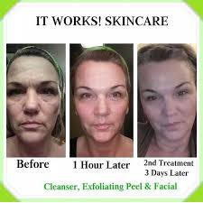 it works exfoliating peel before and after 83 best it works images on pinterest loyal customer skinny wrap
