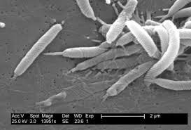 Хеликобактерная инфекция Диагностики хеликобактер пилори  Хеликобактер пилори под электронным микроскопом