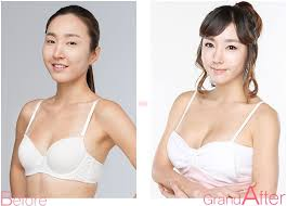 Chinese women with breast implants