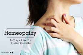 Homeopathy An Easy solution For Treating Dermatitis - By Dr. Ranjana ...
