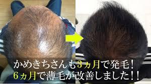 かめきちさんも発毛成功熊本で薄毛aga対策治療は熊本スーパー発毛