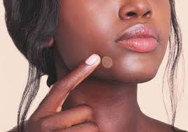 cold sore vs pimple how to tell the