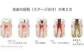 虫歯 自力 で 治す