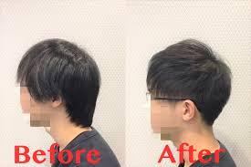 長さは切りたくない薄毛を目立たなくさせる髪形はあるのか