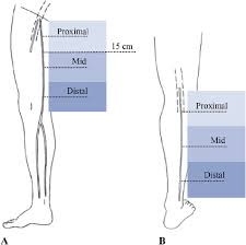 Measurement Sites Of The Great Saphenous Vein A And Small