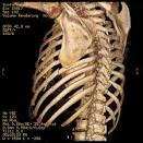 broken rib pain medication